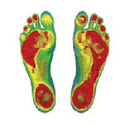 An example of a foot scan